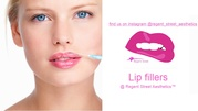 Lip Fillers Watford